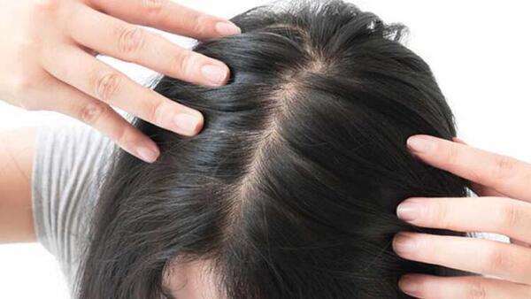 Ateşli hastalıklar saçlarda dökülmeye yol açabilir!